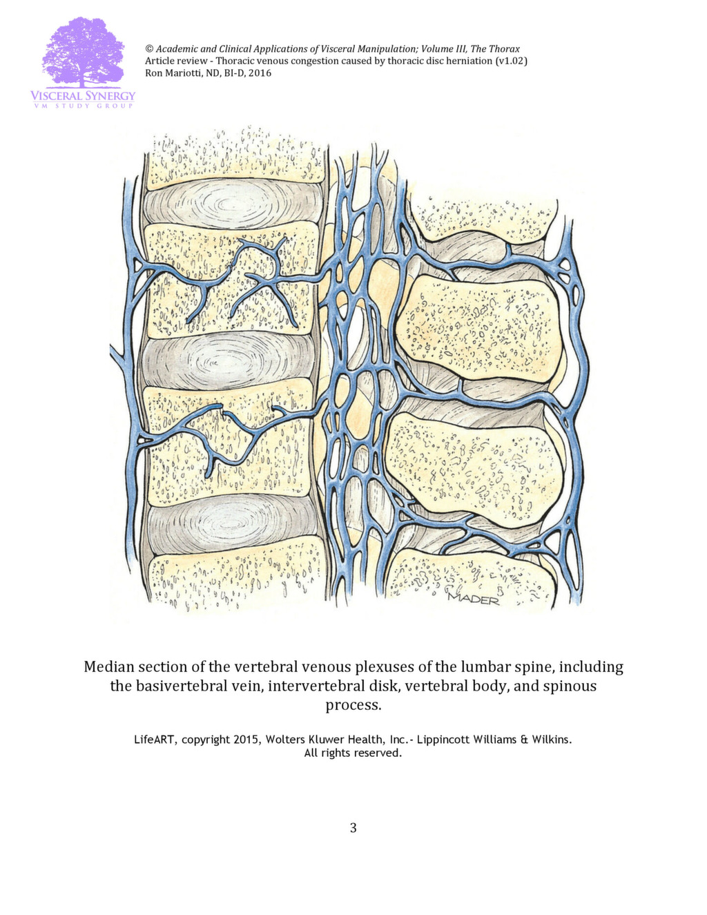 5 things you need to know about thoracic disc herniation! - VM Study ...